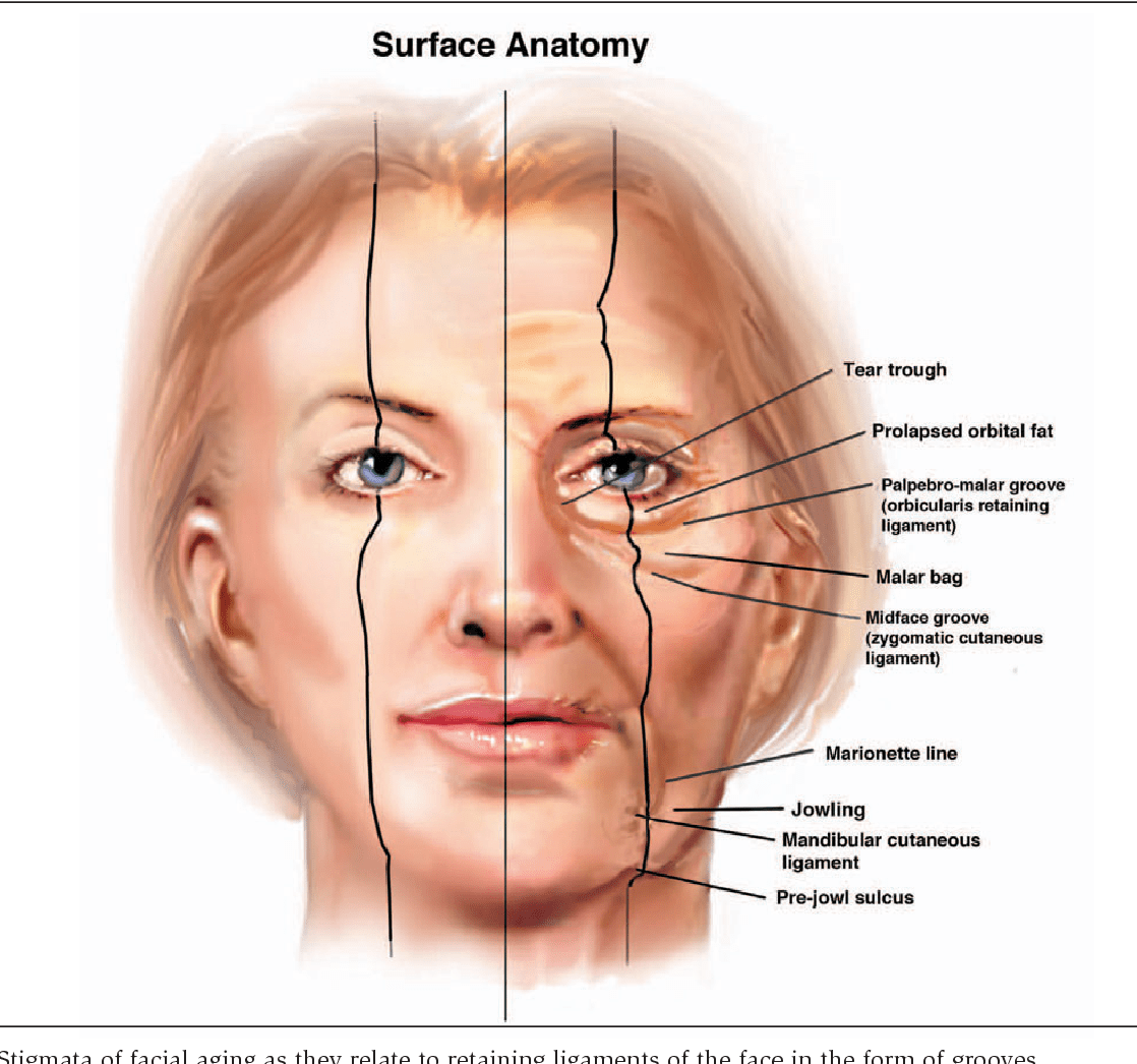 Figure 5 From Retaining Ligaments Of The Face Review Of