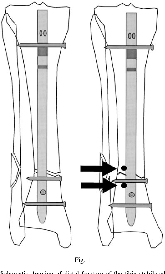 Figure 1 from The use of Poller screws as blocking screws