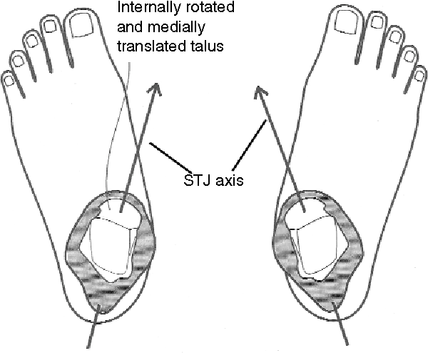 [PDF] Subtalar joint axis location and rotational