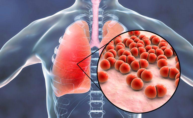 Bronchite O Polmonite Ecco Come Riconoscerle Pazientiit