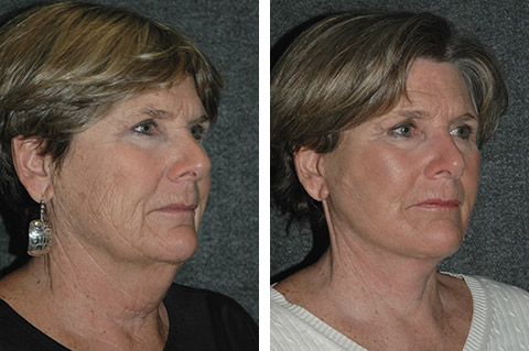 Jowls plastic surgery all about plastic 2017 facelift miami face lift surgery florida to jowls wrinkles ccuart Image collections