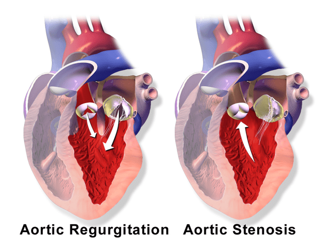 Aortic Sclerosis — Symptoms and Treatment   Medical Library