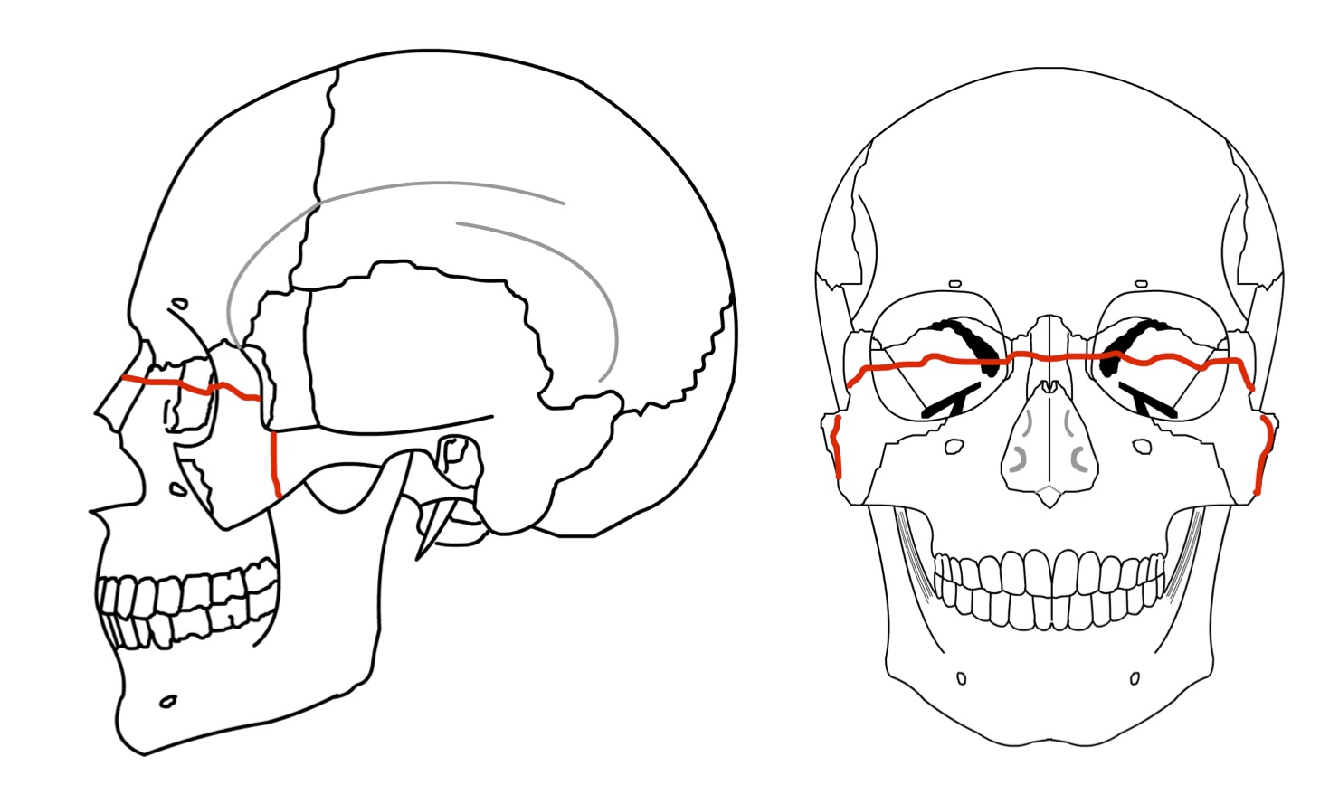 Maxillary Bone And Le Fort Fractures