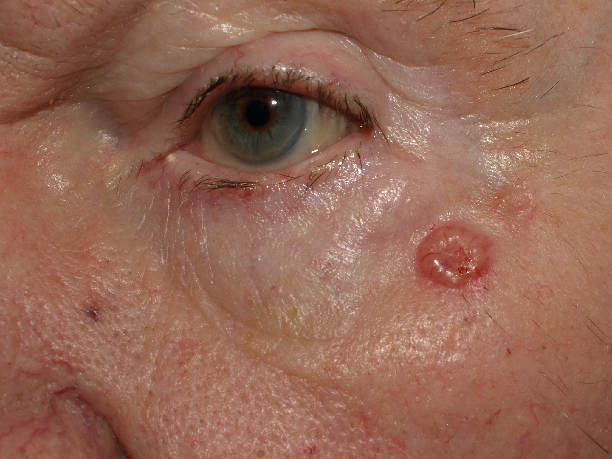 Skin Cancer: Basal Cell Cancer and Melanoma (Malignant ...
