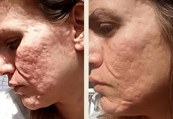 Dermarolling At Home Exfoliators Skin Care