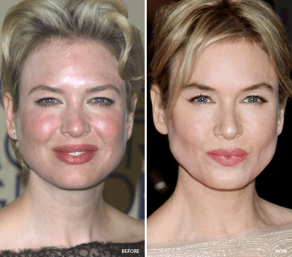 Famous People Rosacea