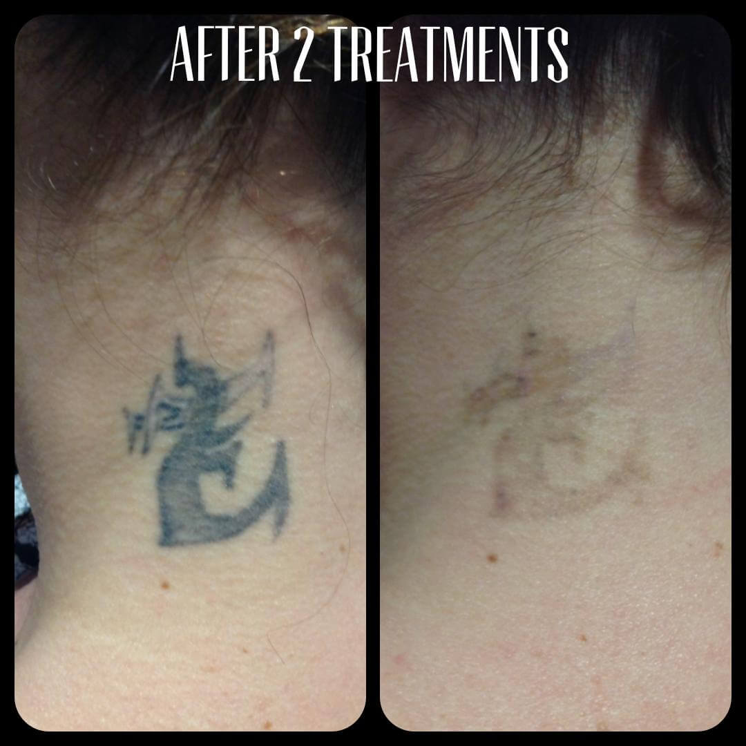 tattoo – cascadelaserblog