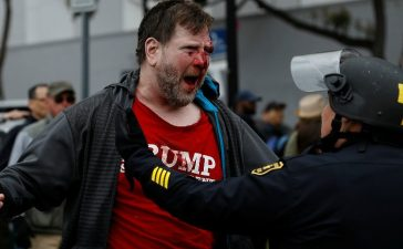 "A bloodied supporter of U.S. President Donald Trump is seen after a ""People 4 Trump"" rally and counter-protest turned violent in Berkeley, California March 4, 2017. REUTERS/Stephen Lam"