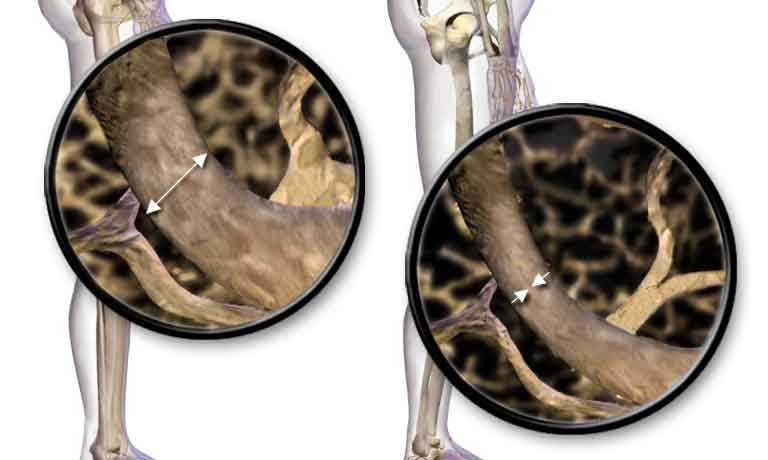 Best Exercises to Build Bone Density