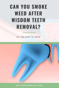 Can You Smoke Weed After Tooth Extraction : smoke, after, tooth, extraction, Safest, Smoke, After, Wisdom, Teeth, Removal, TeethWalls