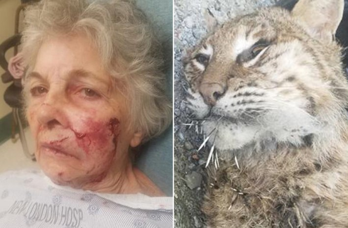 80 Year Old Woman Viciously Attacked While Gardening