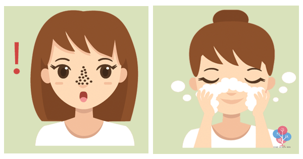 how-to-get-rid-of-blackheads-quickly-at-the-comfort-of-your-own-home