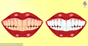 Make Your Teeth White At Home After Only 3 Minutes. A 100% Proof Of Efficacy