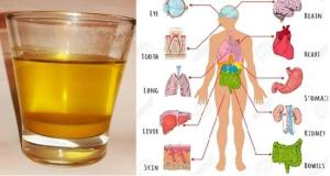 10 Reasons to Drink Warm Turmeric Water Every Morning