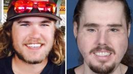Full Face Transplant