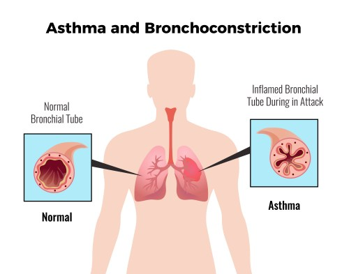 Asthma : 10 Easy Asthma Prevention Measures 1 - Daily Medicos