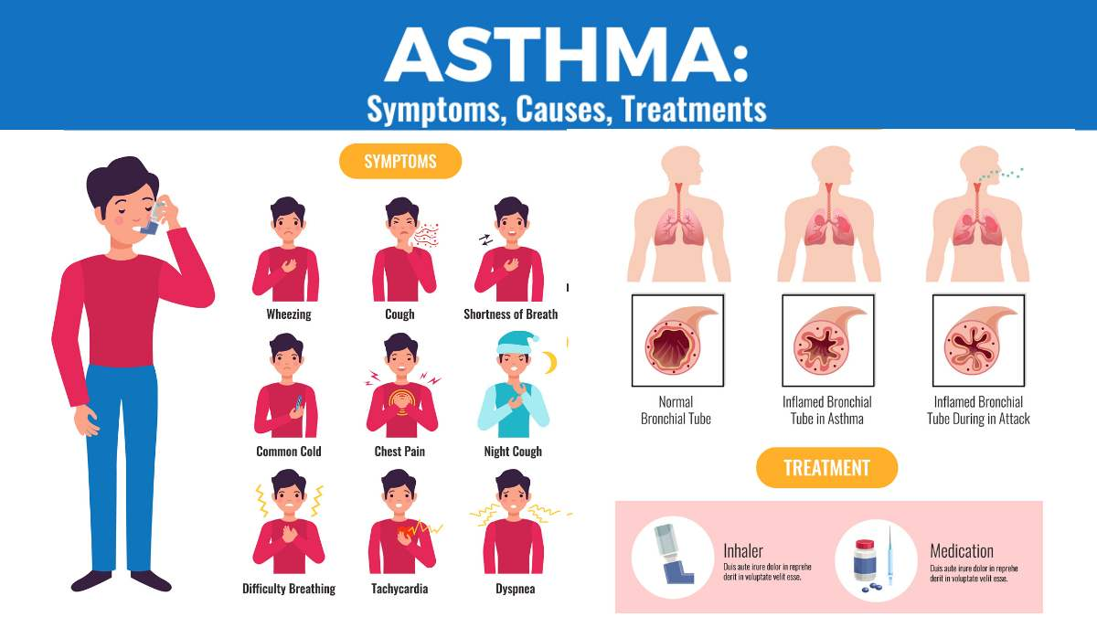 Asthma article by daily medicos