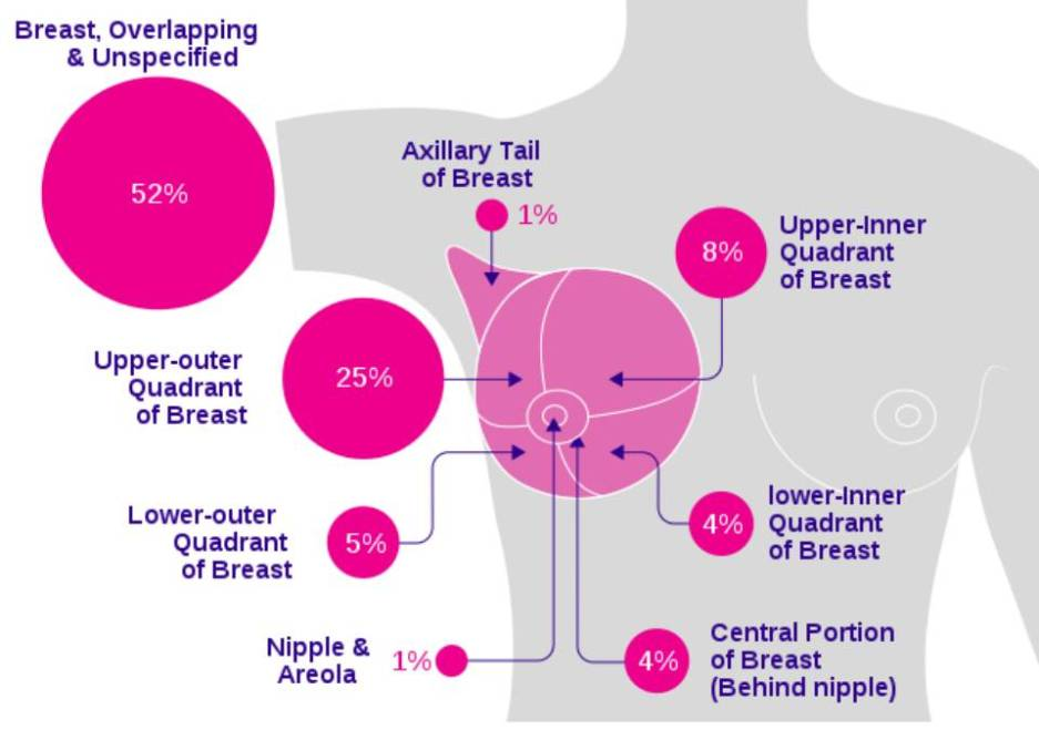 Breast Cancer: types, symptoms, stages and treatment of breast cancer 3 - Daily Medicos