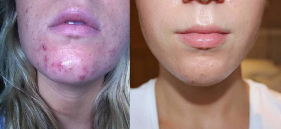 Acne: types, causes, remedies and treatment for acne 5 - Daily Medicos