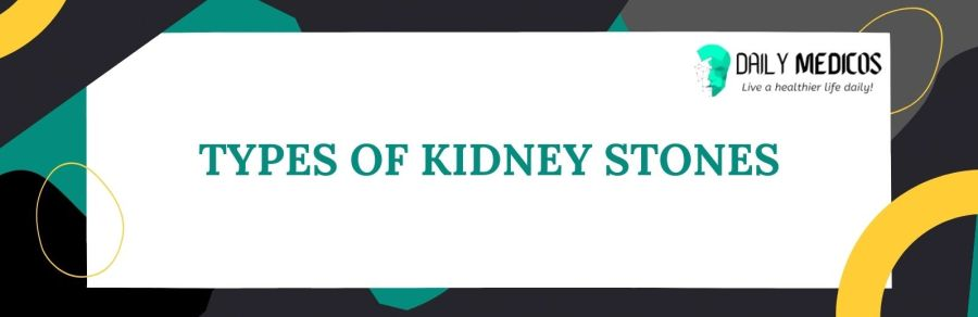 Kidney Stones; Symptoms, Causes, Types of Stones, Treatment, and Preventions 5 - Daily Medicos