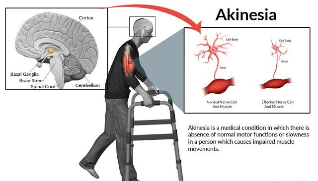 Akinesia: Everything You Need to Know About Akinesia [Causes, Symptoms, & Treatment] 17 - Daily Medicos