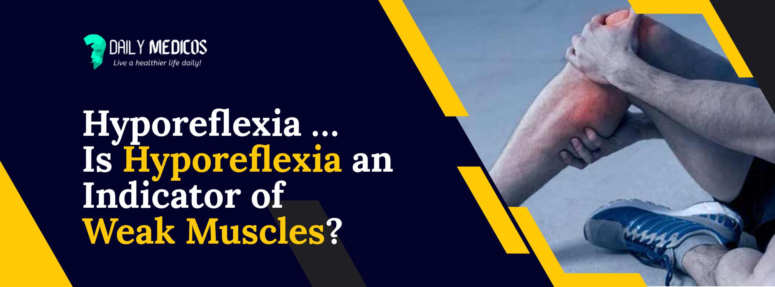 Hyporeflexia ...Is Hyporeflexia an Indicator of Weak Muscles? 1 - Daily Medicos