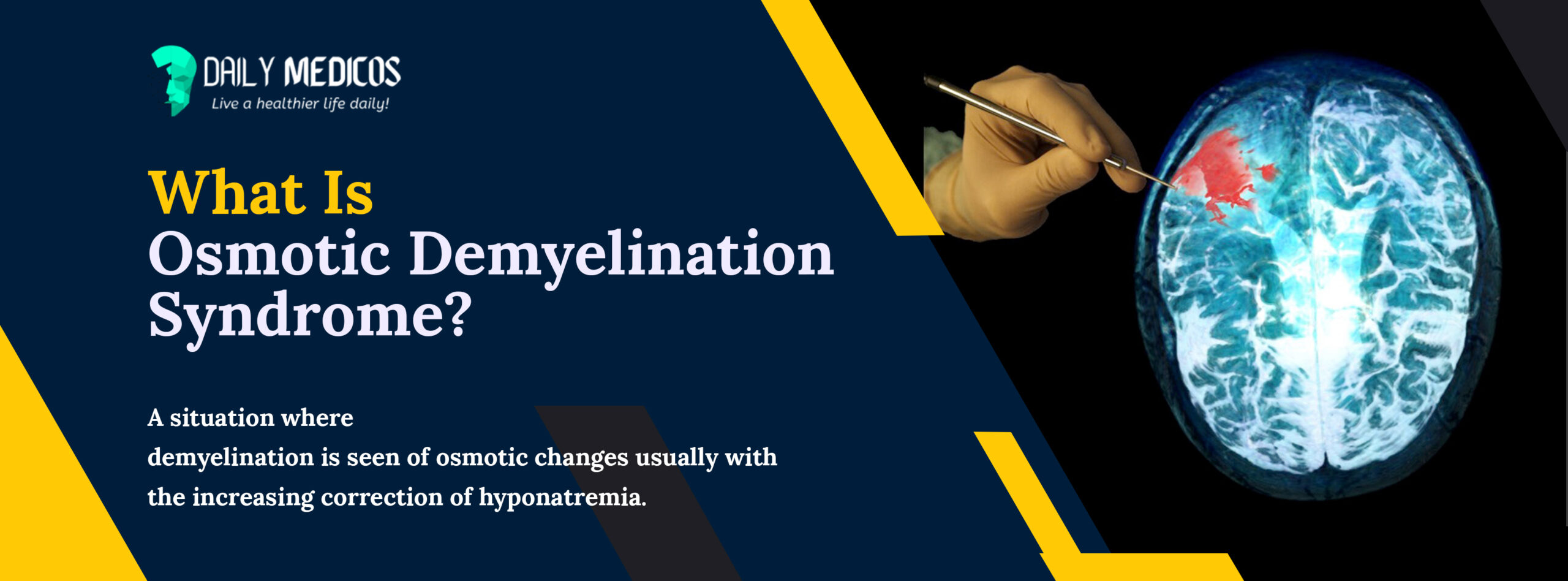 Osmotic Demyelination Syndrome: All You Need To Know 46 - Daily Medicos