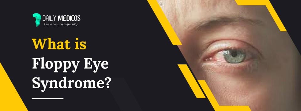 Floppy Eyelid Syndrome (FES): Causes, Symptoms, & Treatment 60 - Daily Medicos
