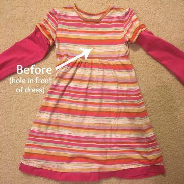 before dress buttons