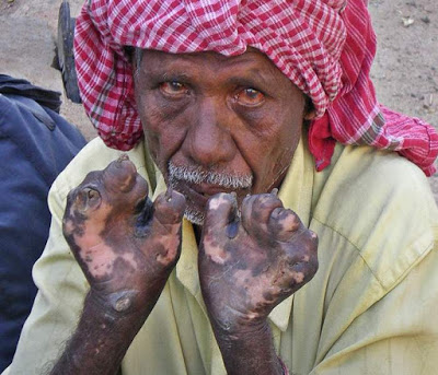 40 people hit with leprosy in Nasarawa in just 2 weeks