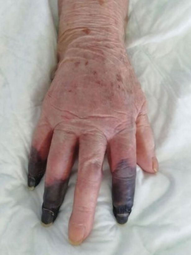 Covid patient's fingers turn black in shocking new 'severe manifestation' of virus