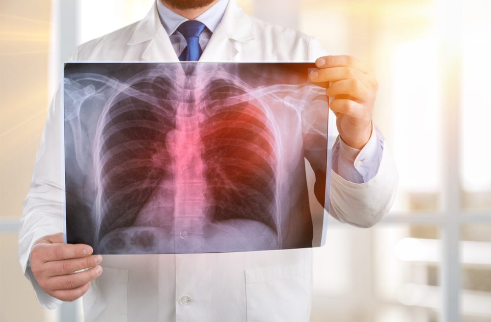 Atezolizumab, A Drug For Immunotherapy, Can Treat The Early Stages Of Lung Cancer