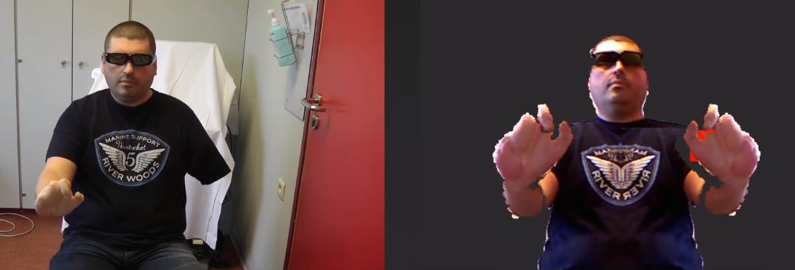 Pour lutter contre les douleurs fantômes, l'ULB propose la réalité virtuelle augmentée.