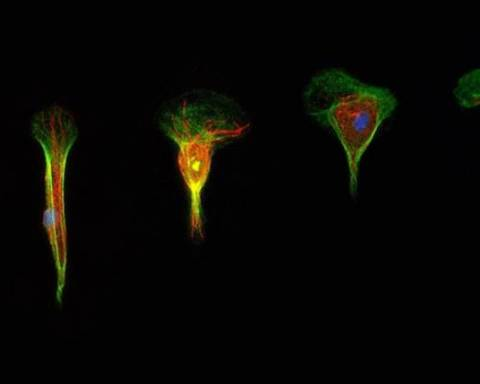 Observations de la modification de la structure d'une cellule en migration (© UMons)