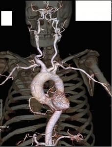 Visualisation des cavités cardiaques, du réseau coronaire et du réseau artériel au départ de la crosse de l'aorte. (Cliquer pour agrandir)