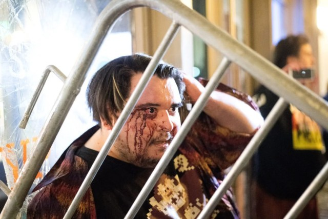 Eddy Brock, who says he is a free speech advocate who was attacked by demonstrators protesting against Yiannopoulos, holds his head in Berkeley, California. (Photo: Noah Berger/EPA/Newscom)