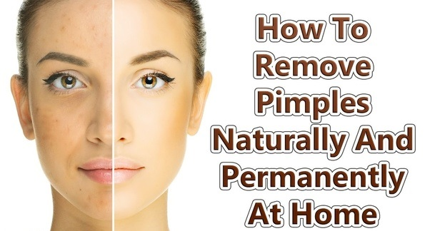 Best Ways To Remove Pimples Naturally