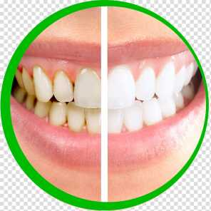 Dental Plaque Removal At Home