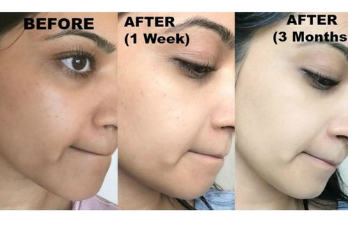 Effective Skin Whitening Remedies At Home