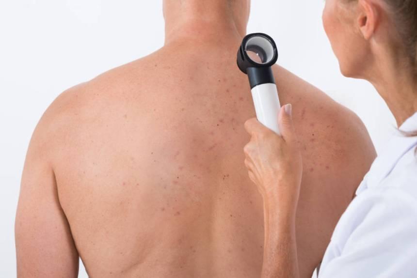 back acne, bacne