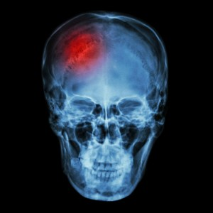 X-ray normal asian skull (Thai people) and headache