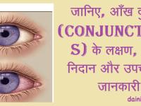 आँख दुखना (Conjunctivitis)