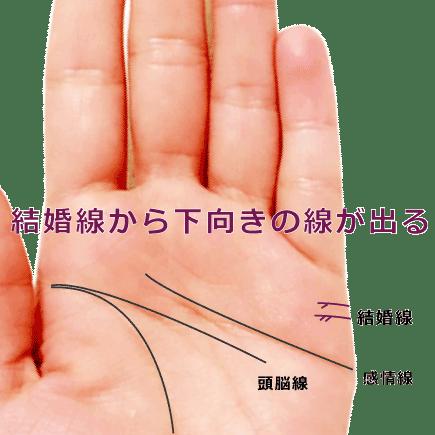 結婚線から下向きの支線が出ている手相の見方