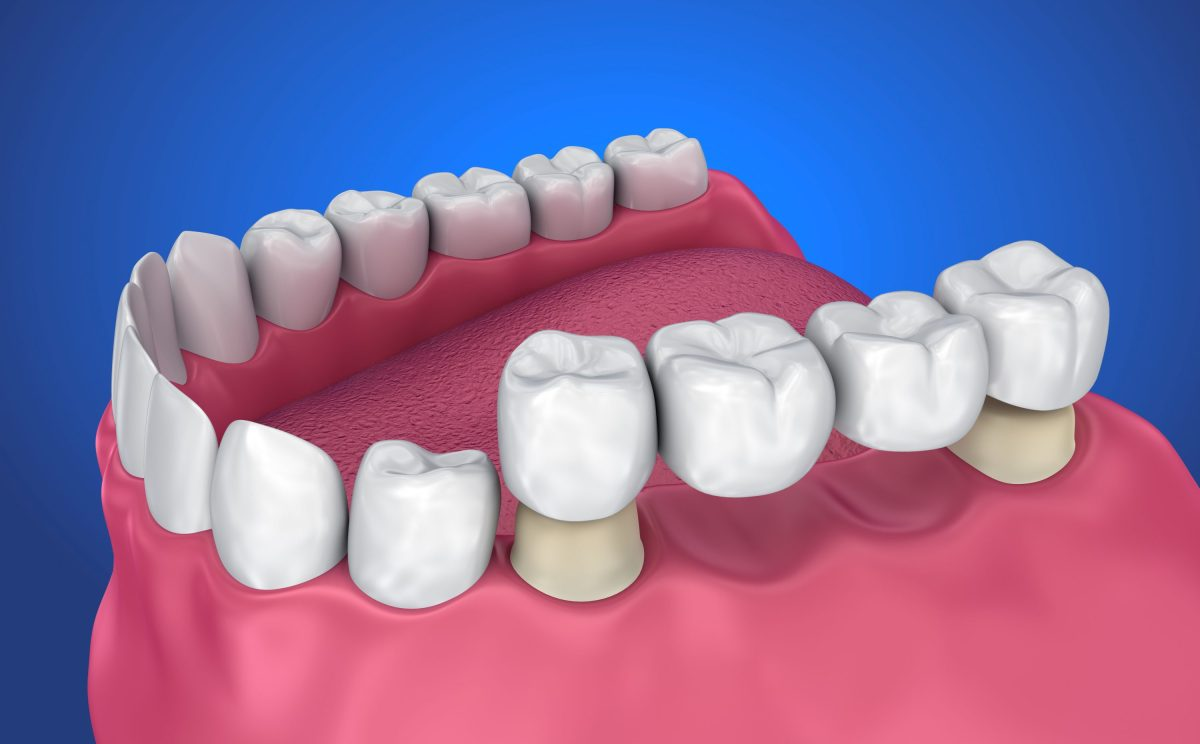 Tooth supported fixed bridge on patient in lake forest ca