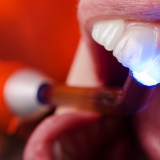 tooth color filling restoration in lake forest