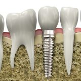 Dental implants in lake forest ca