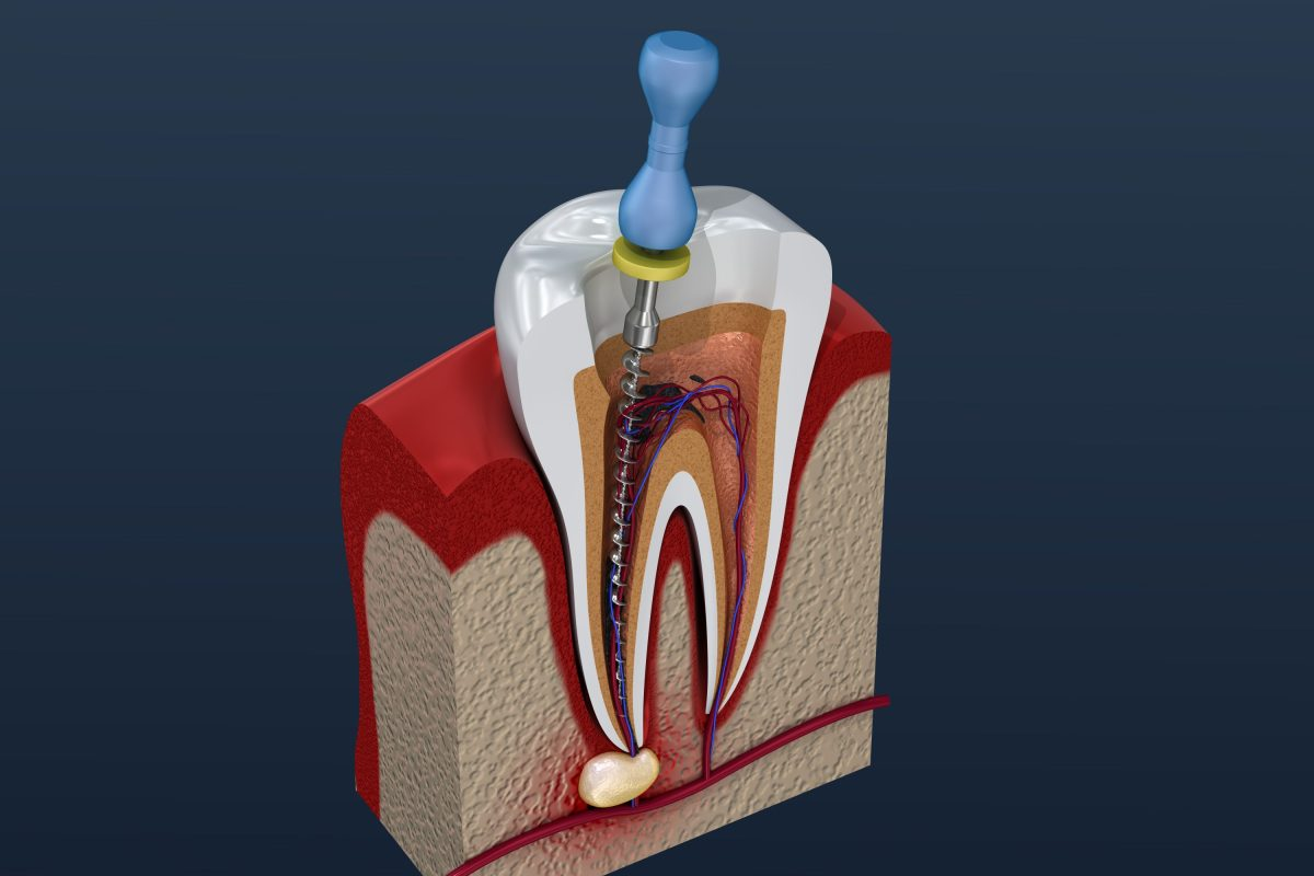 Root canal treatment process on patient in lake forest