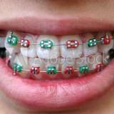 dental braces in lake forest ca
