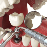 restoring Dental implants in lake forest ca