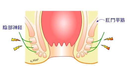 肛門の痛み | よくわかる大腸肛門科